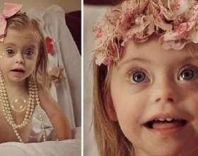 2-Літня дівчинка з синдромом дауна стала моделлю фото