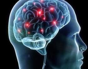 4 Чітких ознаки інсульту фото