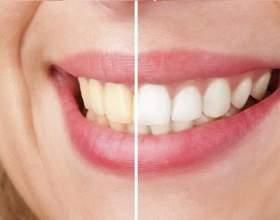 5 Натуральних коштів для збереження білизни зубів фото