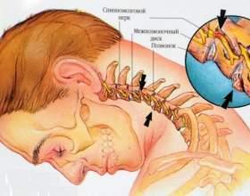 8 Приголомшливий вправ від шийного остеохондрозу фото