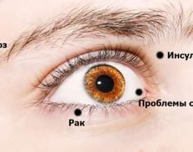 8 Ознак, за допомогою яких ваші очі намагаються попередити вас про проблеми зі здоров`ям! фото