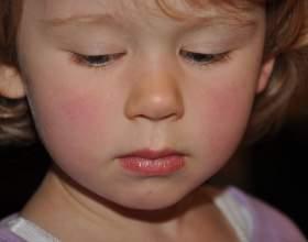 Алергія на саліцилати фото
