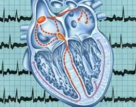 Аритмія серця - причини і лікування народними засобами фото