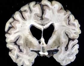Атрофія мозку у новонароджених фото