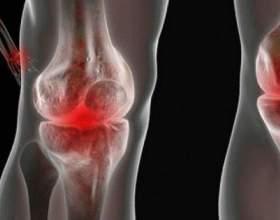 Боротьба з болем у суглобах за допомогою натуральних засобів фото