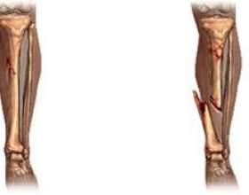 Чим відрізняється відкритий перелом від закритого? фото