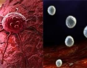 Чим відрізняється саркома від раку фото