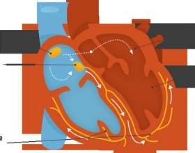 Чим відрізняється серце тренованого і нетренованого людини, і як правильно тренувати серце фото