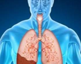 Чим пневмонія відрізняється від запалення легенів? фото