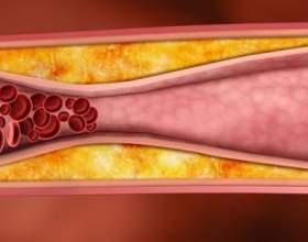 Чистимо судини і кров: рецепт 7 склянок фото