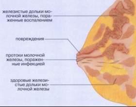 Що таке лактостаз? фото