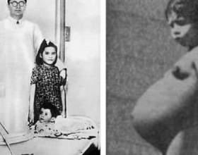 Дівчинка з перу народила в п`ять років! фото