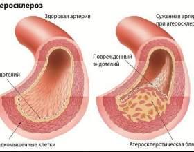 Фізіотерапія при атеросклерозі нижніх кінцівок фото