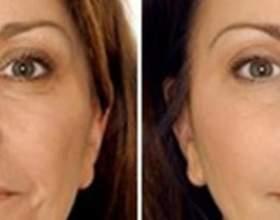 Фракційне лазерне омолодження шкіри обличчя в киеве фото