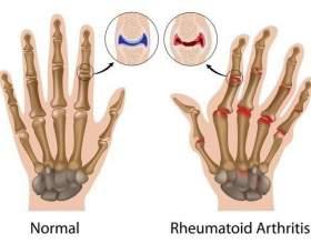Гімнастика при артриті пальців рук фото