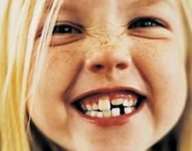 Як карати дитину: поради дитячих психологів фото