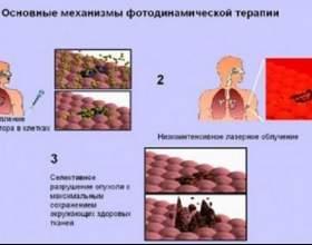 Лікування дисплазії слизової оболонки шлунка фото
