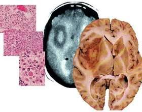 Чи можна вилікувати гліобластом головного мозку і який прогноз життя при раку фото