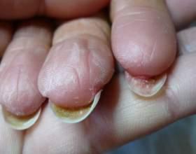 Нарости під нігтями: фото, причини, лікування фото