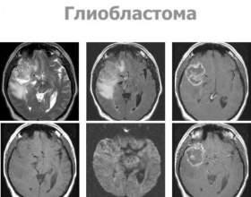 Харчування при гліоми мозку фото