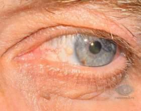 Ru: на білку ока з`явився дивний булька фото