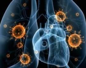 Пневмонія і бронхіт: особливості і чим вони відрізняються фото