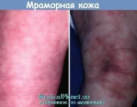 Чому шкіра мармурова фото