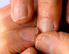 Причин, за якими чорніють нігті на руках, може бути кілька: фото