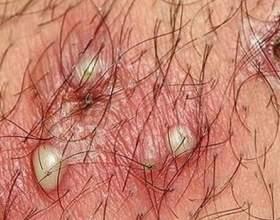Причини, за якими можуть з`явитися прищі на грудях фото