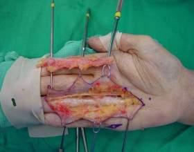 Причини виникнення та допомогу при болю у великому пальці руки фото