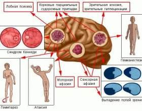 Рак головного мозку: профілактика фото