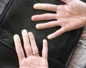 Поширені причини опухання пальців рук фото