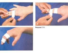 Розрив розгинальній зв`язки першої фаланги середнього пальця - форум, відгуки, обговорення фото