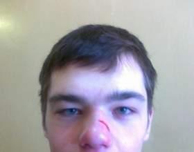 Дитина впала і вдарилася головою - що робити? фото