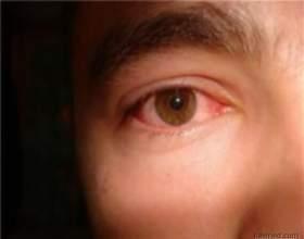 Симптом: очне яблуко: відкладення кальцію фото