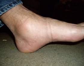 Симптоми кісточки на великому пальці стопи фото