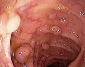 Стадії раку горла (гортані) фото
