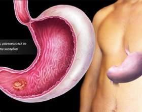 Відрижка, гикавка, печія при раку шлунка фото