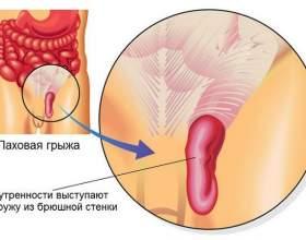Ущільнення в паху у жінок: причини появи і способи лікування фото