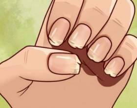 Ваші нігті намагаються повідомити вам важливу річ! фото