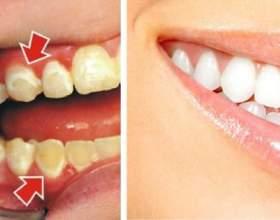 Ось як зняти наліт з зубів всього за 5 хвилин! фото