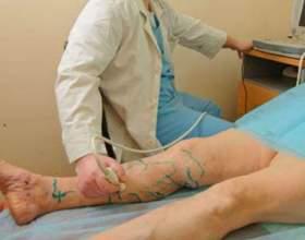 """Лікар-флеболог - при варикозі головне ні в якому разі С""""РѕС'Рѕ"""